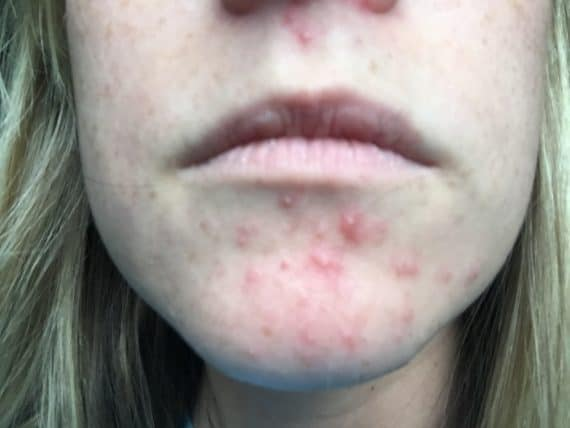 Perioral Dermatitis. Symptoms and treatment of dermatitis ...