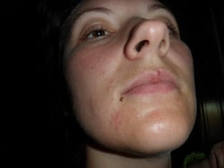 Perioral Dermatitis Before