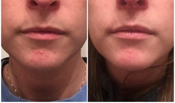 Perioral Dermatitis Safe Products: My Favorites for Sensitive Skin