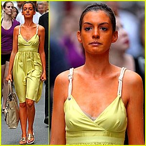 Celebrity spray tan gone wrong