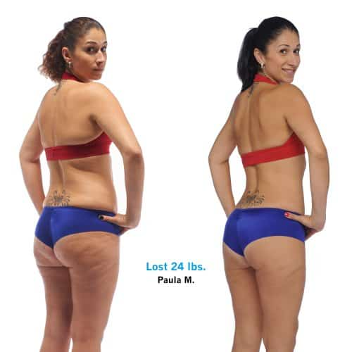 Paulas-Brazil-Butt-Lift-results-with-before-and-after