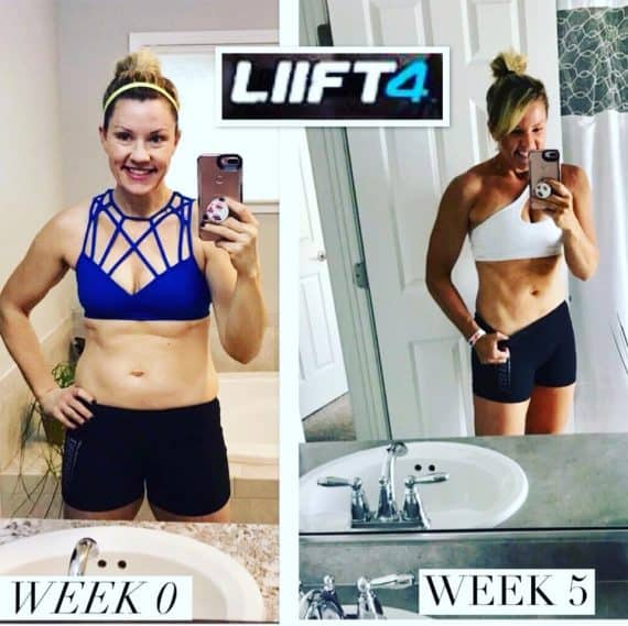 LIIFT4 before and after photo