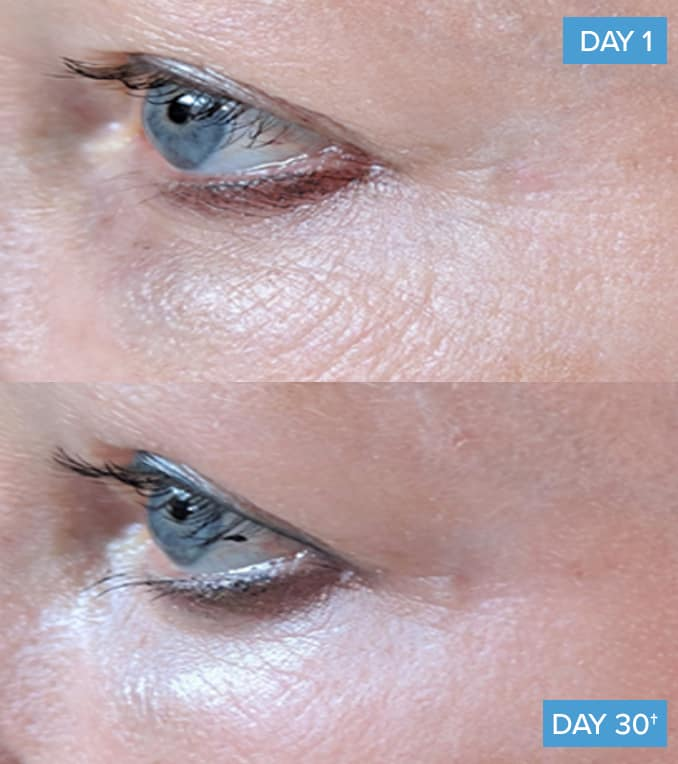 collagen before and after around the eyes